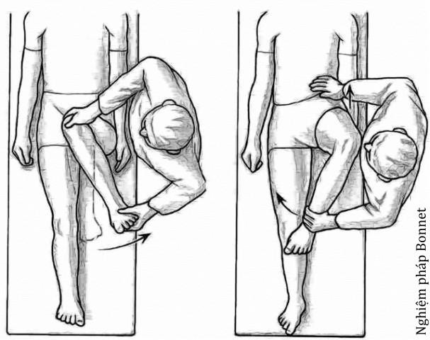 hip impingement3