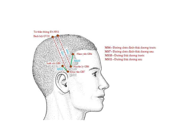 Hình 4. Các đường châm cứu da đầu MS6, MS7, MS10 và MS11 (nhìn bên)