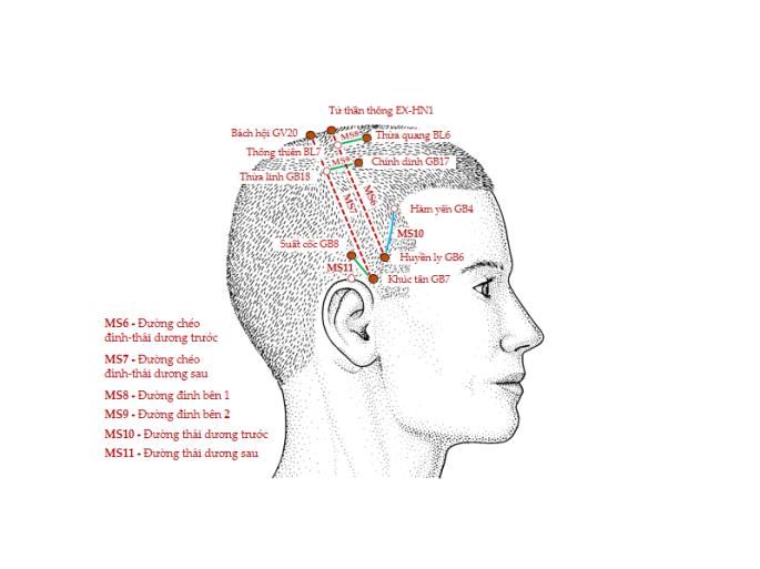 Hình 6. Các đường châm cứu da đầu MS6, MS7, MS8, MS9, MS10 và MS 11 (nhìn bên).