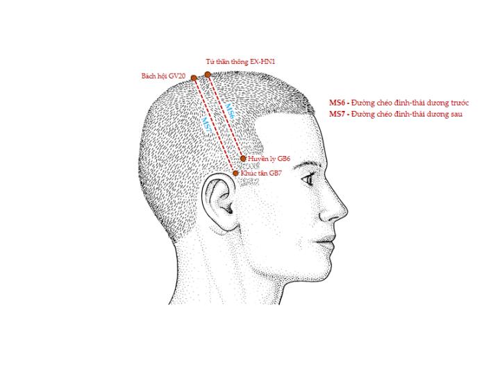 Hình 2. Các đường châm cứu da đầu MS6 và MS7 (nhìn bên)