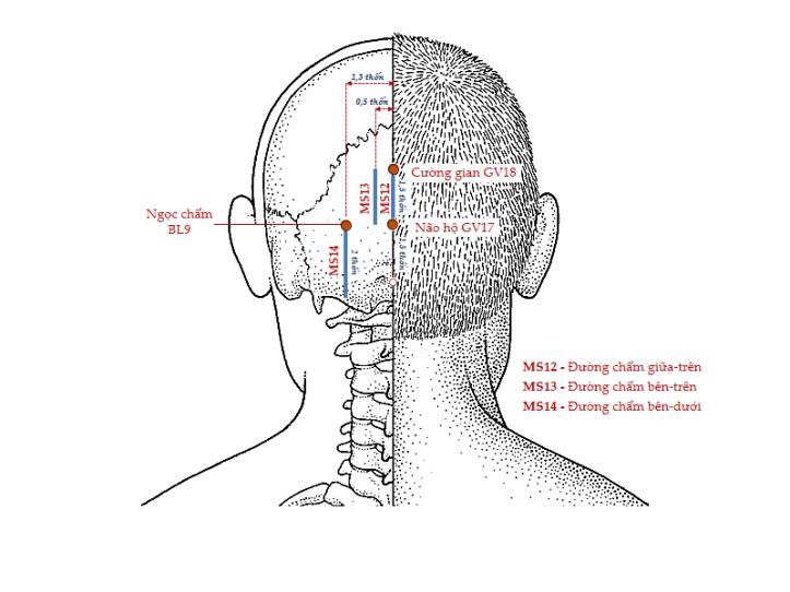 Hình 5. Các đường châm cứu da đầu MS12, MS13 và MS14 (nhìn sau)