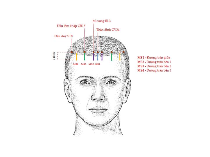 Hình 1. Các đường châm cứu da đầu MS1, MS2, MS3 và MS4 (nhìn trước)